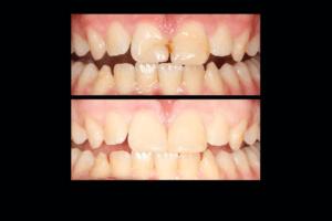 dentist perth